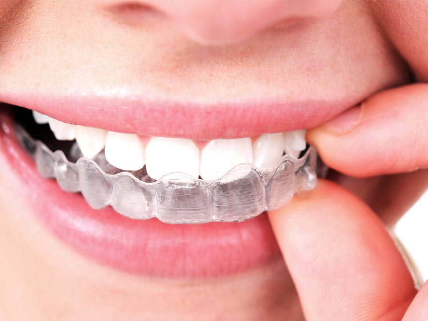How An Inexpensive Alternative To Braces Works